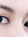 【图】眼球突出是怎么回事 眼球突出吃些什么好
