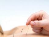 【图】针灸的作用?针灸减肥与美容
